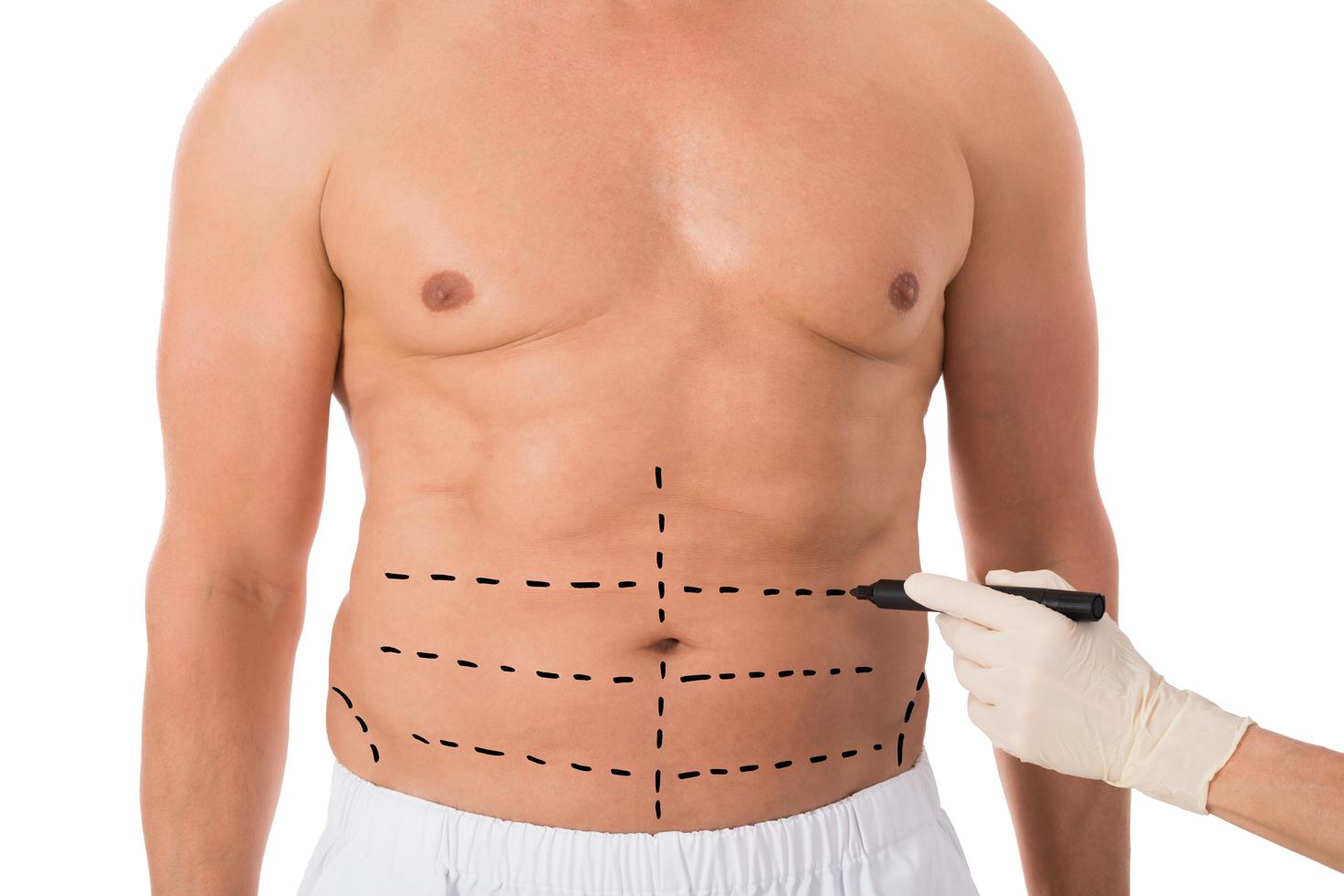 hasan-kutukoglu-liposuction-nedir