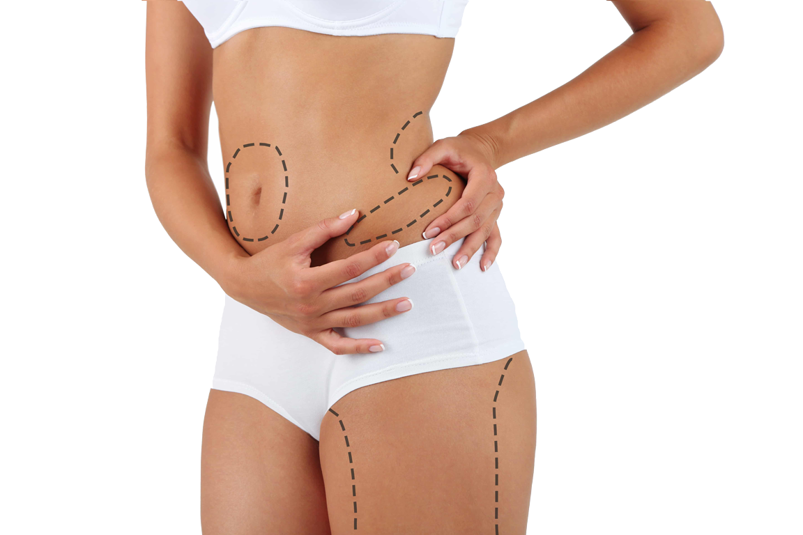hasan-kutukoglu-liposuction-nedir3